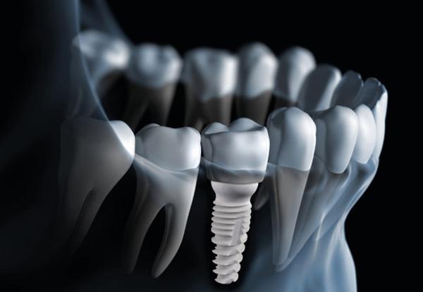 Dental Extractions Crowns Bridges Mercury Free